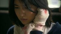 天使の爪 症状:単純型表皮水泡症 ケース02